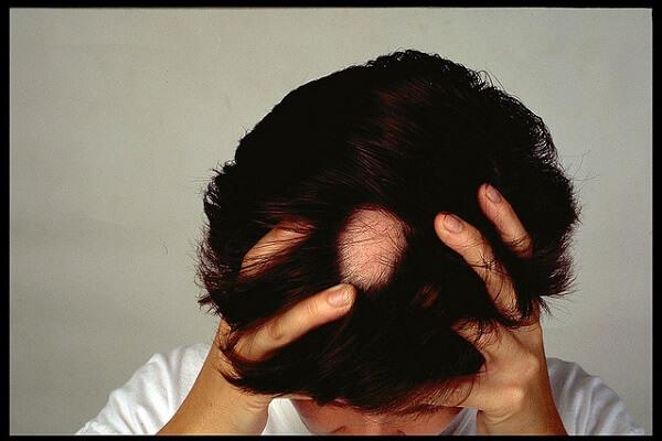 Remedios naturales para la Alopecia.