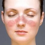 Remedios naturales para tratar el Lupus Eritematoso sistémico.